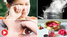 How To Stop Eye Twitching Fast | How To Cure Eye Twitching | Eye Twitching Remedies - Remedies One