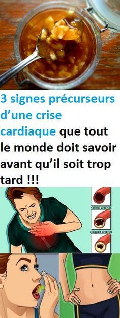 3 signes précurseurs d'une crise cardiaque que tout le monde doit savoir avant qu'il soit trop tard !!!