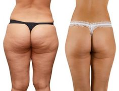How to Get Rid of Cellulite! Three moves to fix the muscle fibers, CREAMS WILL NEVER WORK!!!