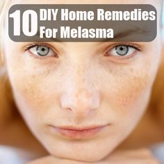 DIY Home Remedies, Kitchen Remedies and Herbs - http://www.remediesandherbs.com/top-10-diy-home-remedies-for-melasma/
