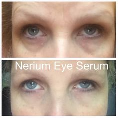 Our new Eye Serum has instant and long term results www.richandjudyclark.nerium.com