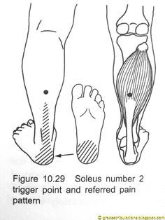 Grace's Tri-bulations: Trigger Point Plantar Fasciitis Away Now: How To Ease Pain Fast