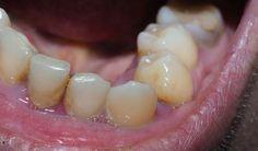 Slecht tandvlees wijst mogelijk op diabetes