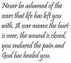 A Scar....