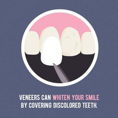 WISHING YOUR TEETH were bright and white instead of stained? Veneers might be just what you need! CALL to book an appointment for veneers! Dental Puns, Humor Dental, Dental Facts, Smile Dental, Dental Hygienist, Veneers Teeth, Dental Veneers, Dental Posters, Get Whiter Teeth