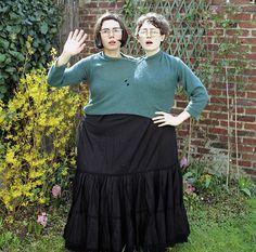 Die 148 Besten Bilder Von Siamesische Zwillinge Conjoined Twins