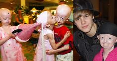 image Hayley with other children with progeria, and posting with Justin Bieber. (Hayley Okines / Facebook)   According to the Progeria Research Foundation, this disease is caused by a mutation in the gene called LMNA (pronounced, lamin - a). Children with progeria begin to display signs of this condition, which include growth failure, loss of body fat and hair, wrinkled skin and stiff joints at around 18-24 months and eventually die of heart disease (atherosclerosis or hardening of the…