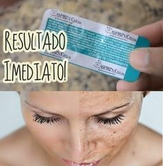 If you suffer with blemishes on the face I bring you the solution to your problem of how to lighten stains on the face with aspirin as it contains acid in your formula. You will need: 03 to 04 aspi… Se necesita for blemishes on the face – United Healt Beauty Care, Diy Beauty, Beauty Hacks, Hip Problems, Tips Belleza, Beauty Recipe, Weight Loss Tips, Losing Weight, Body Care