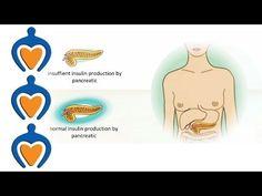Diabetes - The different types of diabetes and its treatment - http://nodiabetestoday.com/diabetes/diabetes-the-different-types-of-diabetes-and-its-treatment/?http://www.precisionaestheticsmd.com/