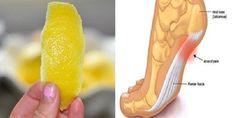 O limão, não cansamos de repetir, é uma fruta superpoderosa.  Apenas o teor de vitamina C desta frut...