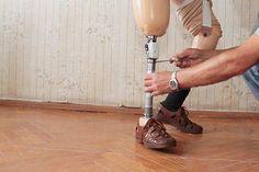 Designer Creates SeeThrough D Printed Prosthetics Made From Titanium - Designer creates see through 3d printed prosthetics made from titanium