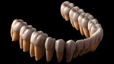 La impresión 3D, clave en los nuevos implantes dentales