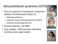 Velocardial facial syndrome