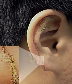 Novel Brain-Computer Interface on the Ear | Brain signals can be read using soft, flexible, wearable electrodes that stick onto and near the ear like a temporary tattoo... [Neurotechnology: http://futuristicnews.com/tag/brain/ Neuroscience Books (Brain-Computer Interfacing): http://futuristicshop.com/category/neuroscience-books-neurotechnology-books/ NeuroGadgets: http://futuristicshop.com/category/mind-control-games/]