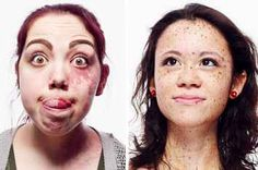 12 People Talk About What Makes Their Skin Unique