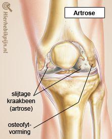 knie artrose slijtage kraakbeen