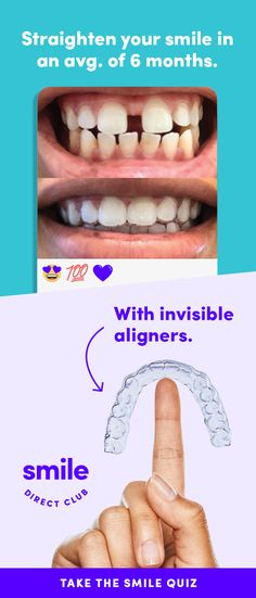 Take the free quiz to see how it works. Get your dream smile with invisible aligners for just $85/mo.