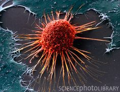 Cervical cancer cell (imaged using a scanning electron microscope [SEM]). Website says those or cytoplasmic projections that give this cancer cell MOBILITY. Love this site!