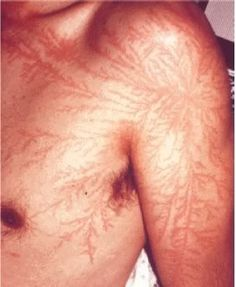 There's a special pattern that appears on people after they get struck by lightning!
