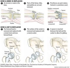 How a hip and knee are replaced - Patrick Garvin and Boston Globe infographic using hand-drawn images Massage For Men, Good Massage, Premenstrual Dysphoric Disorder, Make An Infographic, Infographics, Therapeutic Touch, Massage Pressure Points, Ligaments And Tendons, Trigger Point Therapy