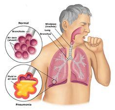 Recognizing The Different Types Of Pneumonia