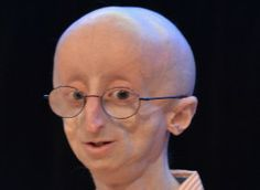 Sam Berns, a 17-year-old who became a well-known face of a rare premature aging disease called progeria, died Friday at home from complications of his condition, Reuters reported. His family and friends said goodbye to the inspiring teen at his funeral service on Tuesday.