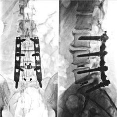 Corrección ortopédica
