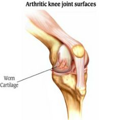Immediate Relief For Arthritis Flare Ups In The Knees How To Treat Knee Arthritis Pain