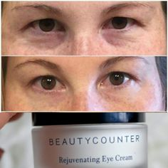 Eye Cream - Some Gentle Remedies For Great Skin Care >>> More info could be found at the image url. #EyeCream