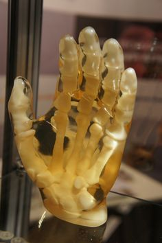 3D Printing Medical. 3D printed hand. Seen @ RapidPro 2013 Conference & Exhibition