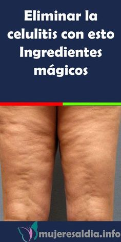 Eliminate cellulite with this Magic Ingredients . Beauty Care, Beauty Skin, Beauty Hacks, Diy Beauty, Homemade Beauty, Beauty Ideas, Cellulite, Skin Tag Removal, Beauty Tips For Face
