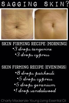 Is sagging skin a problem for you? Then try using these Essential oils to see a vast improvement in your sagging skin. I don't like the smell of Cypress so I don't think this recipe wou… Essential Oils For Skin, Essential Oil Uses, Young Living Essential Oils, Cypress Essential Oil, Before Wedding, Sagging Skin, Aromatherapy Oils, Living Oils, Doterra Essential Oils