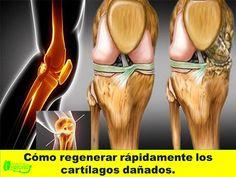 Aprenda a recuperar el cartílago deteriorado de sus caderas y rodillas – e-Consejos