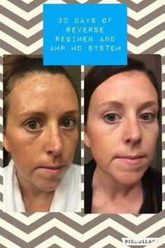 R+F has regimens for all skin concerns. Ask me how to get started.