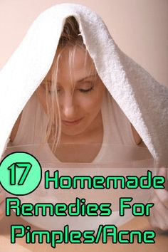 Homemade Remedies For Pimples/Acne (very informative, although some remedies seem a little strange :D)