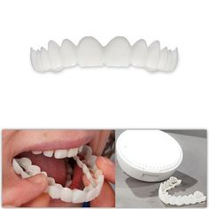 New technology has made removable dental veneers incredibly affordable. Redesign and straighten the appearance of your smile: gapped teeth, missing teeth, chipped teeth, broken teeth, crooked or misaligned teeth We make it very thin yet extremely durable. It fits right over your own teeth to give you a beautiful, natur