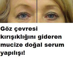 Göz çevresi tüm vücudumuzda en hassas ve en ince deriye sahip olan yerdir .V… The area around the eyes is the most sensitive and thinnest skin in our entire body. Beauty Care, Beauty Hacks, Make Up Tutorial Contouring, Eye Wrinkle, Skin Mask, Natural Eyes, Eye Makeup Remover, Wrinkle Remover, Prevent Wrinkles