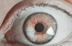 Image result for sectoral heterochromia