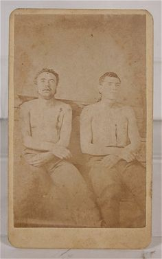 Very rare cdv of postmortem photograph of Clell Miller and Bill Chadwell, members of the James-Younger Gang. Killed during the attempt to rob First National Bank of Northfield, Minnesota. (c. 1876).