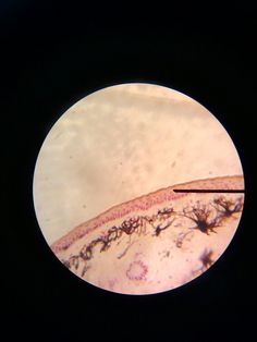 Stratified squamous epithelial cells.