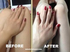 How To Whiten Hands And Feet With This Home-Made Moisturizer - LVS