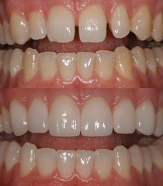 What a difference veneers can make! Courtesy O'Fallon MO Dentist, monticellodental.com