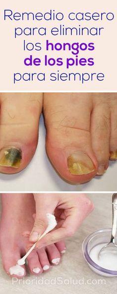 Remedios caseros para eliminar los hongos de las uñas, muy efectivos!