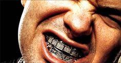 Dental Grills: 5 Celebrities with Teeth That Go Bling - Cosas Que Hacer Para Una Boca Sana Health Insurance Companies, Dental Insurance, Paul Wall Grillz, Diamond Teeth, Tooth Pain, Dental Procedures, Dental Humor, Beard Care, Dental Health