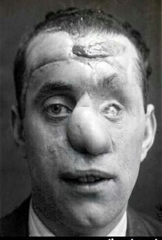 early face reconstruction following WW1