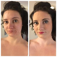 Before and after with younique mineral touch pressed powder! I am in love with this product!!! youniqueproducts.com/SamaraMacpherson