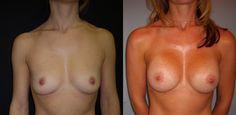 Si vous avez les seins plats, peu développés ou asymétriques, alors l'augmentation mammaire est la solution idéale pour vous: avec les implants mammaires, vous aurez des seins plus volumineux aux courbes joliment dessinés. Découvrez tout sur cette opération en visitant notre site internet. http://www.clinique-chirurgie-esthetique-tunisie.org/augmentation-mammaire-tunisie.php