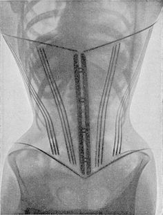 X-Ray images of women wearing corsets from the second volume of the French doctor Ludovic O'Followell's Le Corset (1908). Although Dr O'Followell was clearly keen to show the damaging impact of corsets on women's health, he did not actually want the corset to be abolished, but was simply trying to encourage a less severe design. Dr O'Followell in fact continued to write a regular column for the deluxe corsetier's magazine Les Dessous Elégance.   The Public Domain Review
