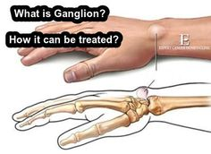 What is Ganglion? How it can be treated? https://goo.gl/mnrDDg #Ganglion #Homeopathydoctors #Homeopathyclinics #Gangliontreatment