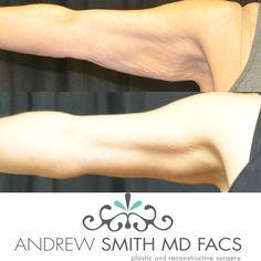 Brachioplasty by: Dr. Smith #drandrewsmith #andrewsmithmd #plasticsurgery #boardcertifiedplasticsurgeon #orangecounty #socal #cali #beauty #cosmeticsurgery #body #surgery #weightloss